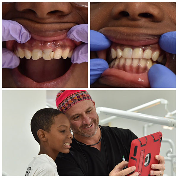 First-State-Dental-Operation-Smile-2017-2