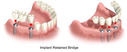 Dental Implant Retained Bridge and Denture