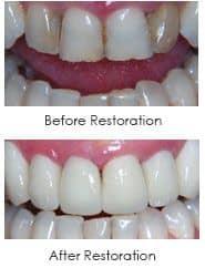 Ceramic Dental Crowns | Dentist Wilmington DE 19806