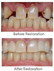 Before and After dental work using cosmetic bonding and veneering