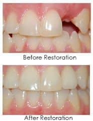 Dental implants before and after image