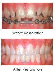 full mouth reconstruction, before and after pictures