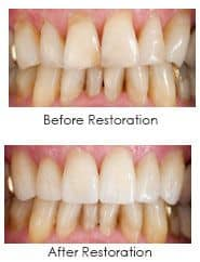 porcelain veneers, before and after photos