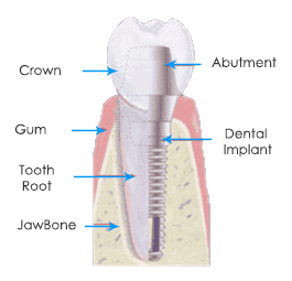 Dental implant and tooth illustration